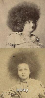 Circus Freaks, Femme, Enfant Avec Crazy Frizzy Fair. Cdv, Deux Ensembles